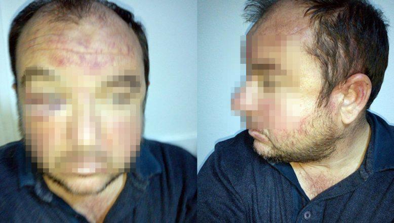 Zimmet soruşturmasının sürdüğü ETUS'ta bıçaklı kavga: 4 yaralı