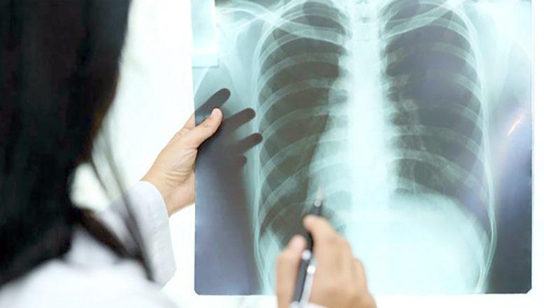 """""""Akciğer hastalıkları, genetik ve çevresel etkenlere bağlı gelişebiliyor"""""""