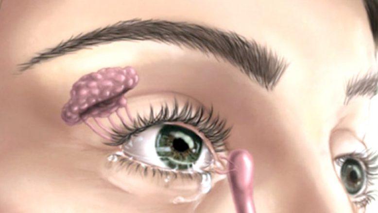 """""""Göz Kuruluğu neden olur, tedavi yöntemleri nelerdir?"""""""