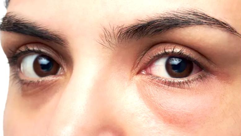 Göz altı torbaları neden olur? Ameliyatsız tedavisi nedir ?