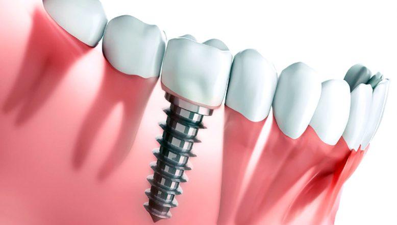 Diş İmplantı sonrası nelere dikkat edilmeli?