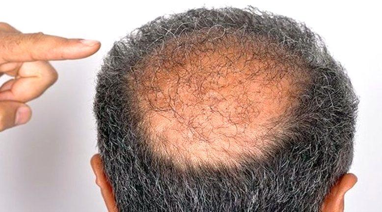 """""""Saç dökülmesini tetikleyen nedenler"""""""