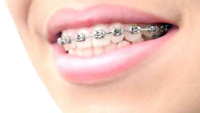 """""""Diş teli olanlar da ağız bakımına dikkat"""""""